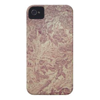 Brustkrebs unter dem Mikroskop iPhone 4 Case-Mate Hülle