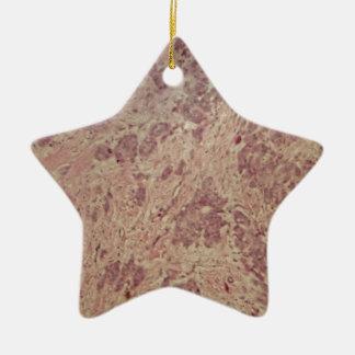 Brustkrebs unter dem Mikroskop Keramik Ornament