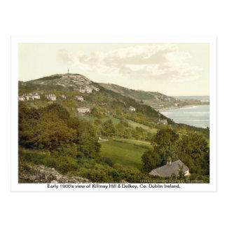 Carte Postale L'Irlande vintage, colline de Killiney, Dalkey
