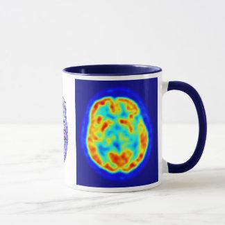 Gehirnbild Tasse
