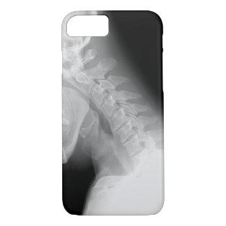 Kiefer-und des Dorn-X Strahl iPhone 7 Fall iPhone 8/7 Hülle