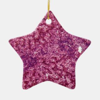 Menschliche Leberzellen mit Krebs Keramik Ornament