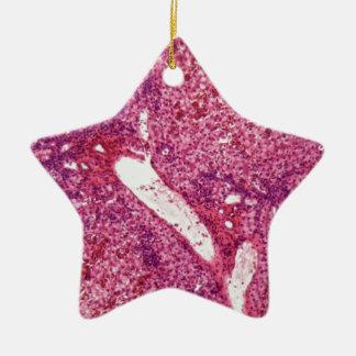 Menschliche Leberzellen mit Krebs unter dem Keramik Ornament