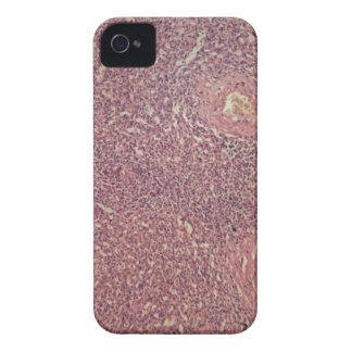 Menschliche Milz mit chronischer myelogenous iPhone 4 Hülle