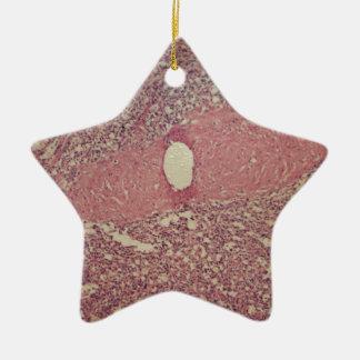 Menschliche Milz mit chronischer myelogenous Keramik Ornament