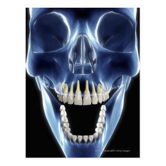 Röntgenstrahlartblick auf menschliche Zähne Postkarte
