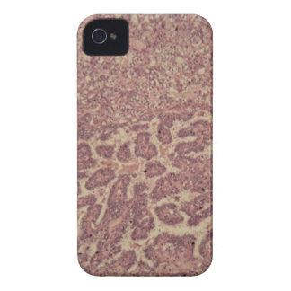 Schilddrüsezellen mit Krebs Case-Mate iPhone 4 Hülle