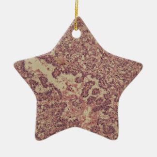 Schilddrüsezellen mit Krebs Keramik Ornament