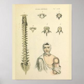 Wirbelsäule-Wirbel-Anatomie-Kunst-Druck Poster